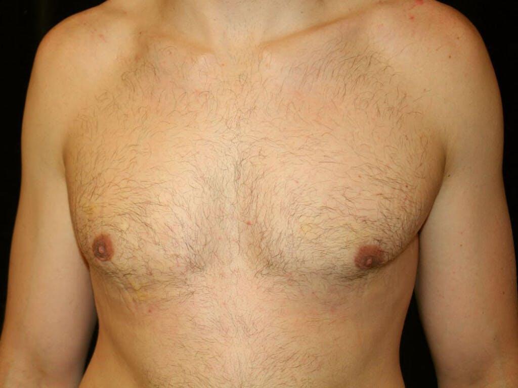 Gynecomastia Gallery - Patient 39352746 - Image 2
