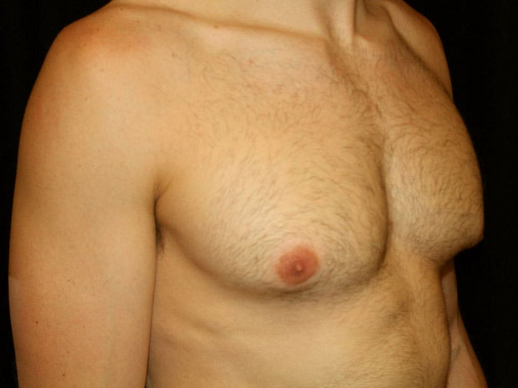 Gynecomastia Gallery - Patient 39352746 - Image 3