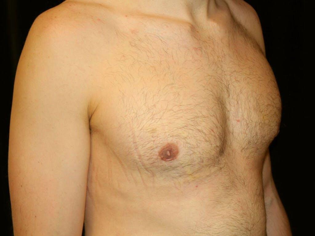 Gynecomastia Gallery - Patient 39352746 - Image 4