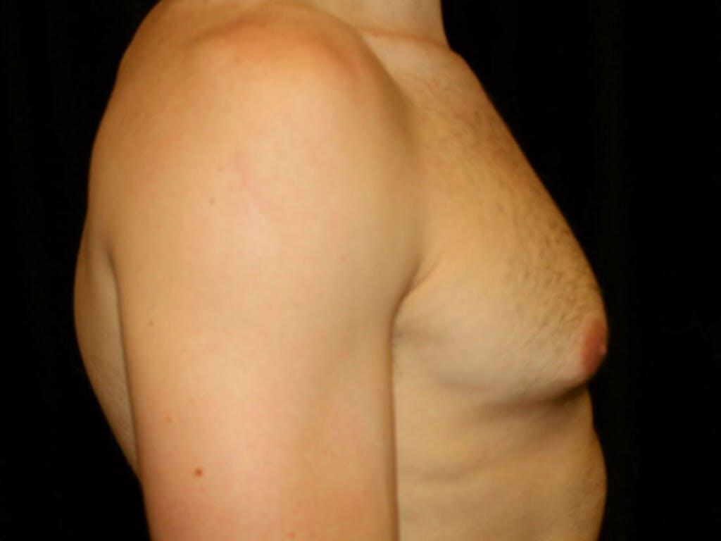 Gynecomastia Gallery - Patient 39352746 - Image 5