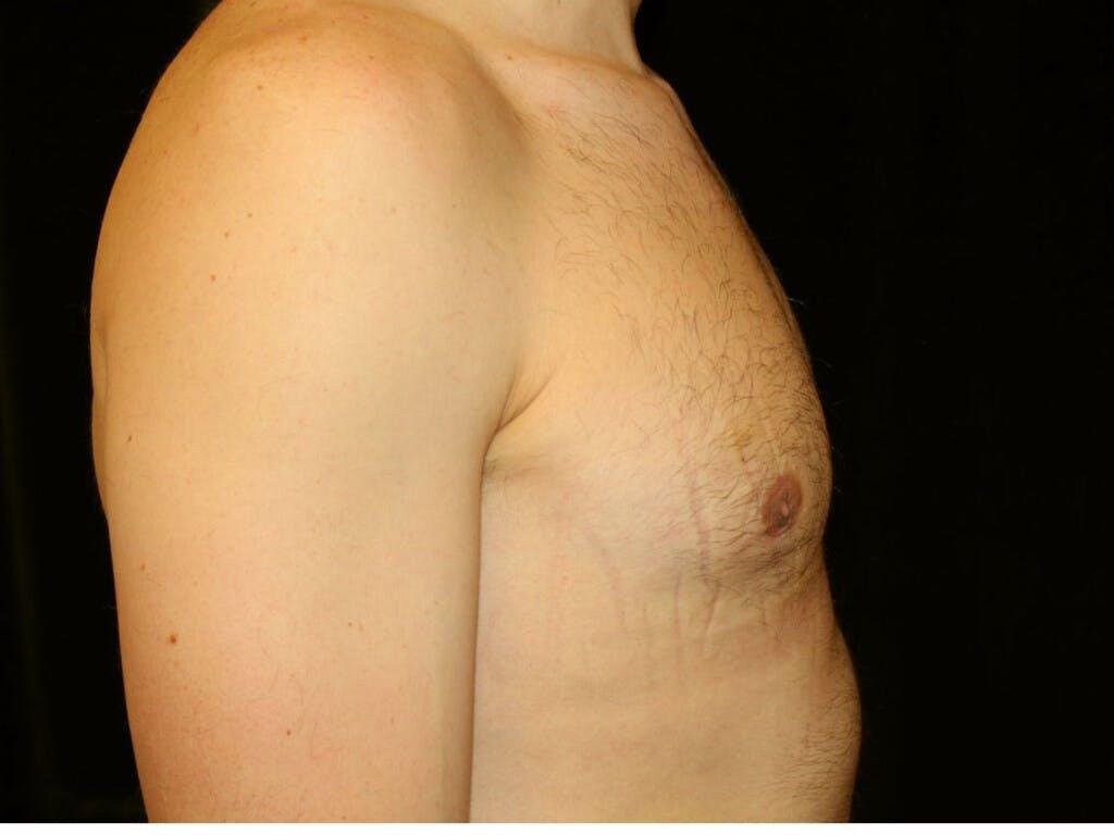 Gynecomastia Gallery - Patient 39352746 - Image 6