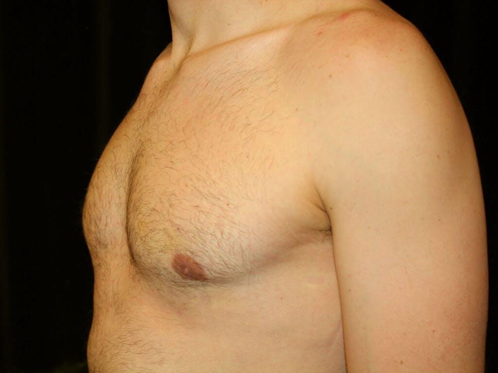 Gynecomastia Gallery - Patient 39352746 - Image 8