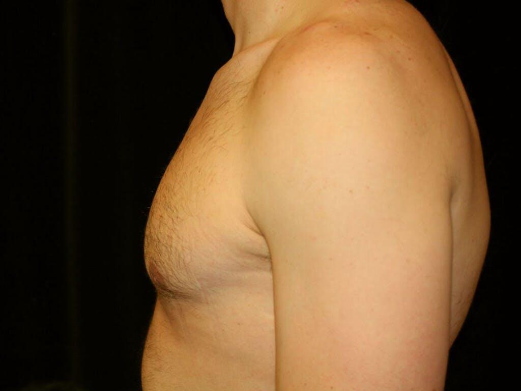 Gynecomastia Gallery - Patient 39352746 - Image 10