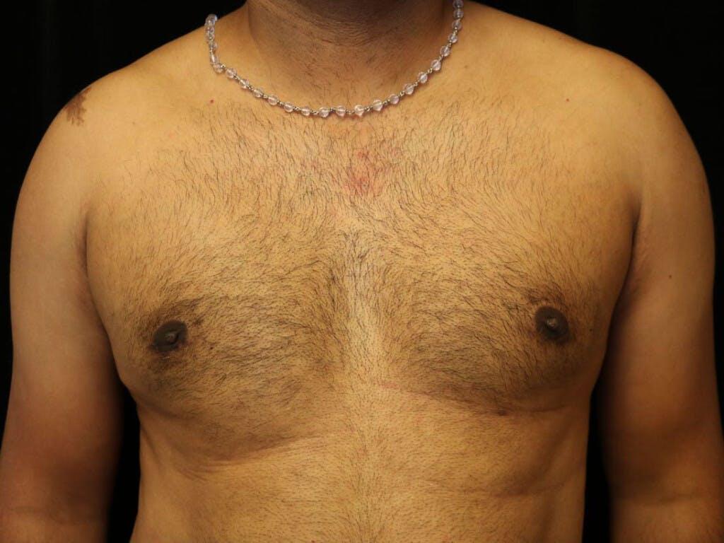 Gynecomastia Gallery - Patient 39352749 - Image 2