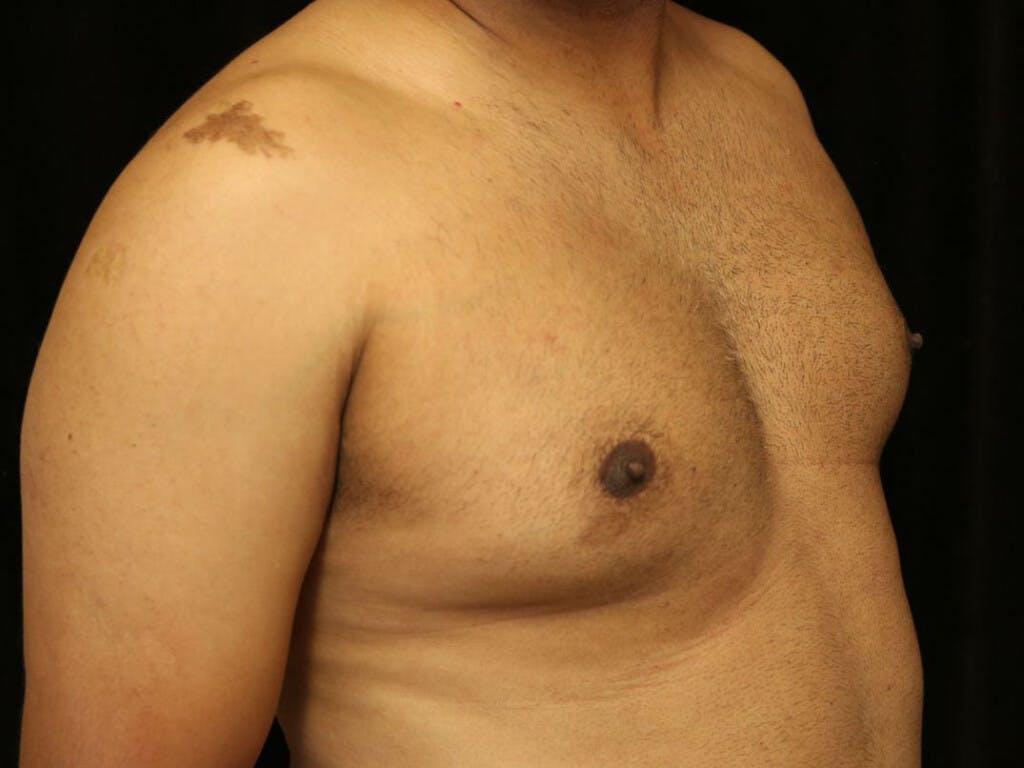 Gynecomastia Gallery - Patient 39352749 - Image 3