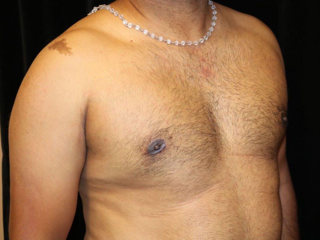Gynecomastia Gallery - Patient 39352749 - Image 4
