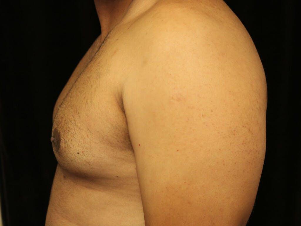 Gynecomastia Gallery - Patient 39352749 - Image 7