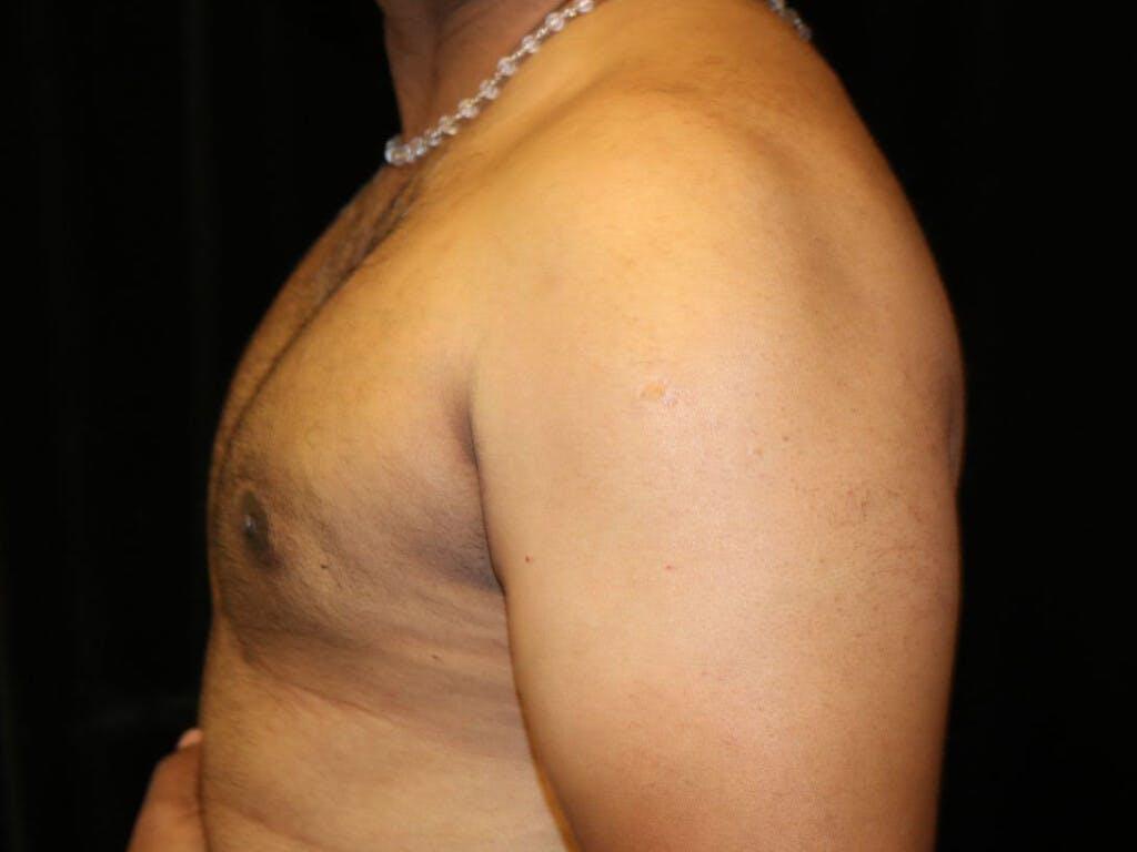 Gynecomastia Gallery - Patient 39352749 - Image 8