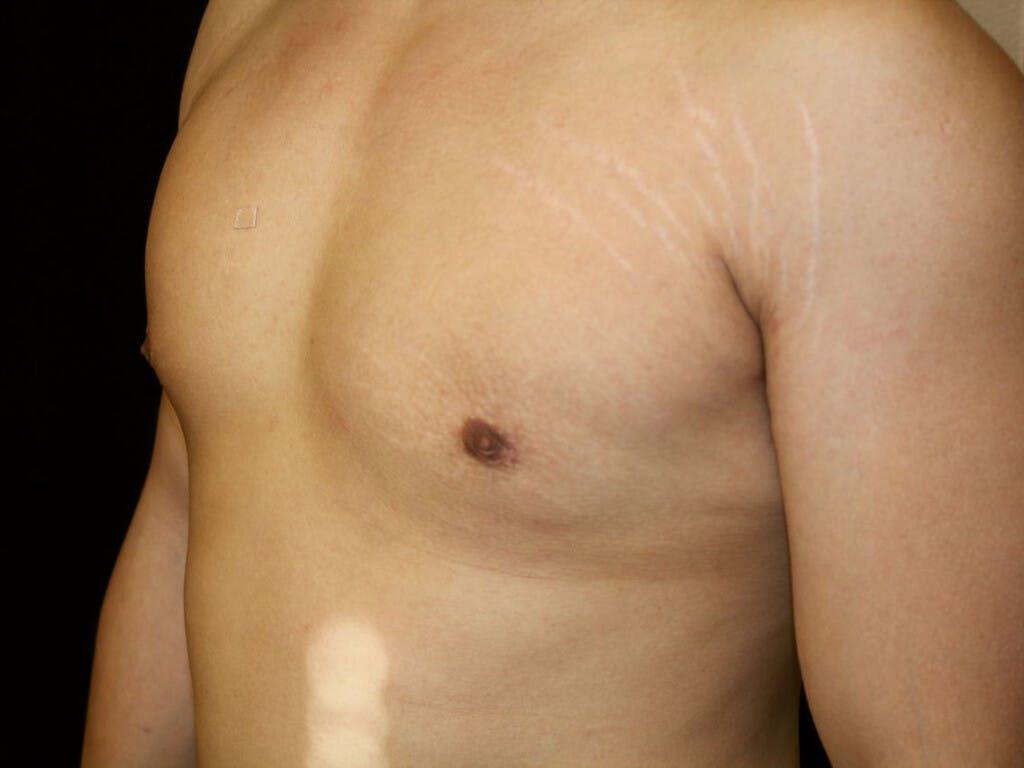 Gynecomastia Gallery - Patient 39352769 - Image 6