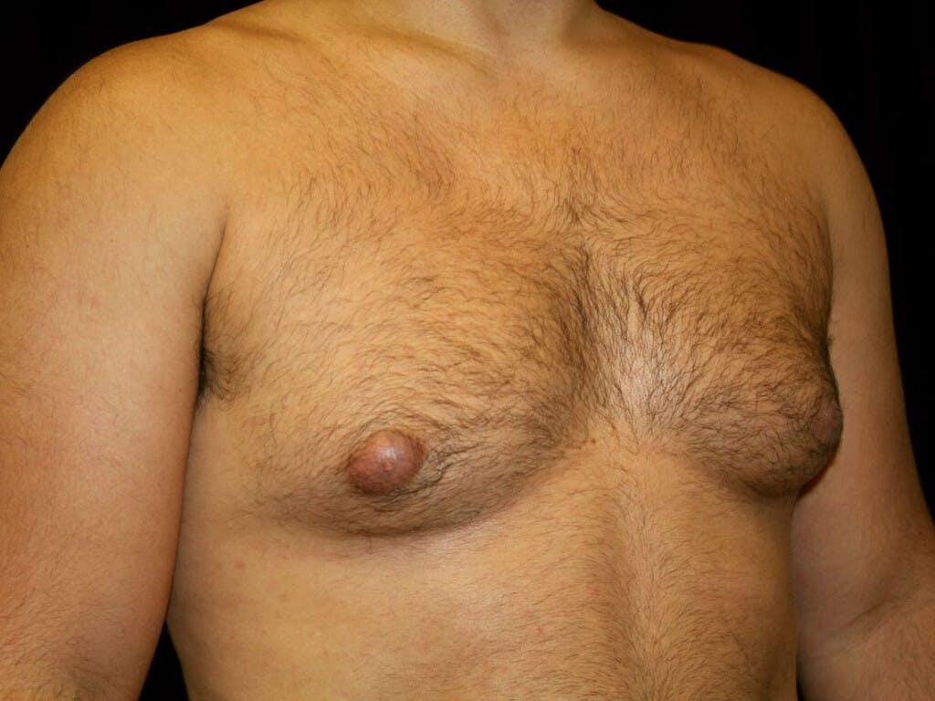 Gynecomastia Gallery - Patient 39352778 - Image 3
