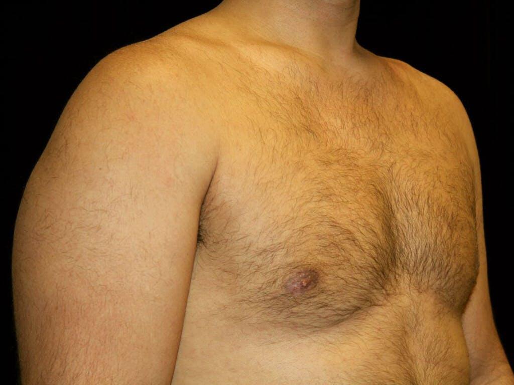 Gynecomastia Gallery - Patient 39352778 - Image 4