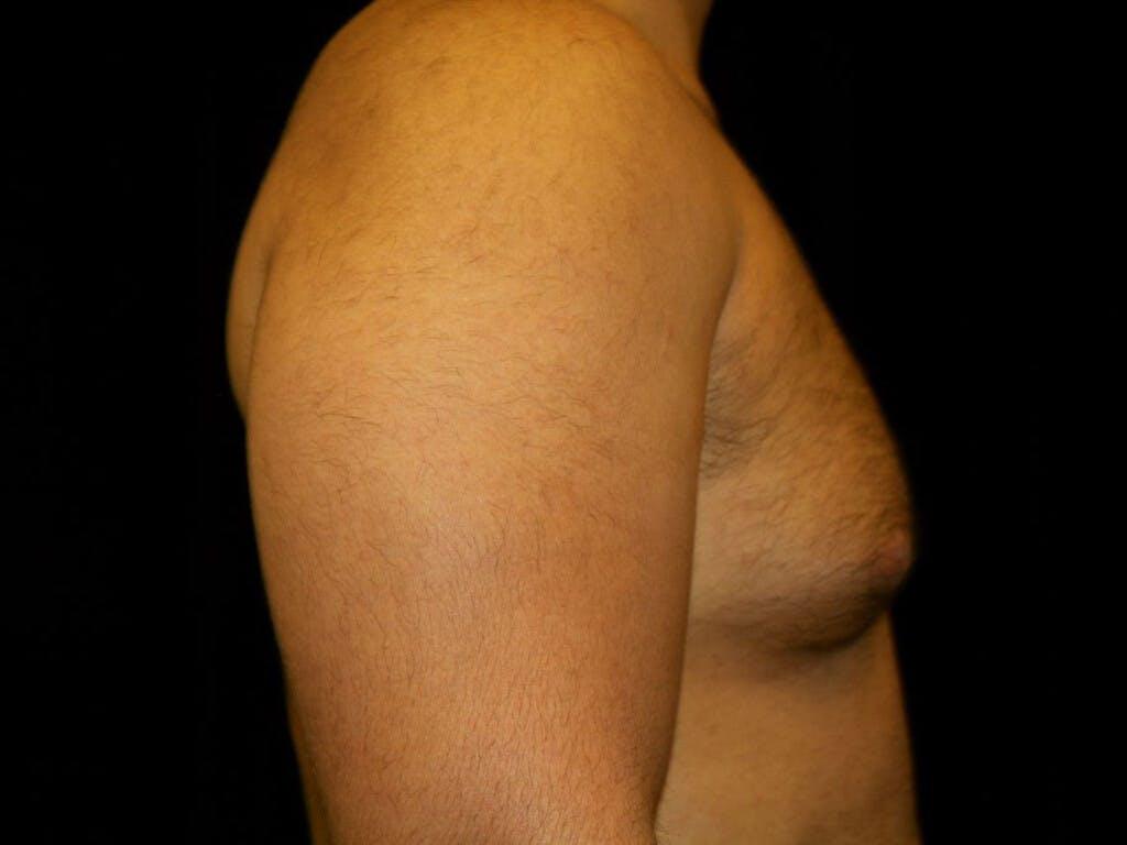 Gynecomastia Gallery - Patient 39352778 - Image 5