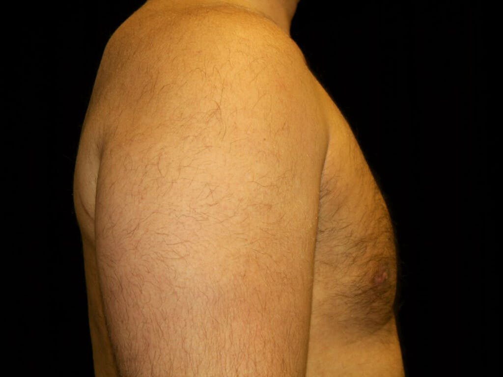 Gynecomastia Gallery - Patient 39352778 - Image 6