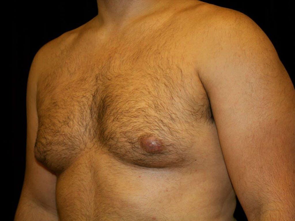 Gynecomastia Gallery - Patient 39352778 - Image 7