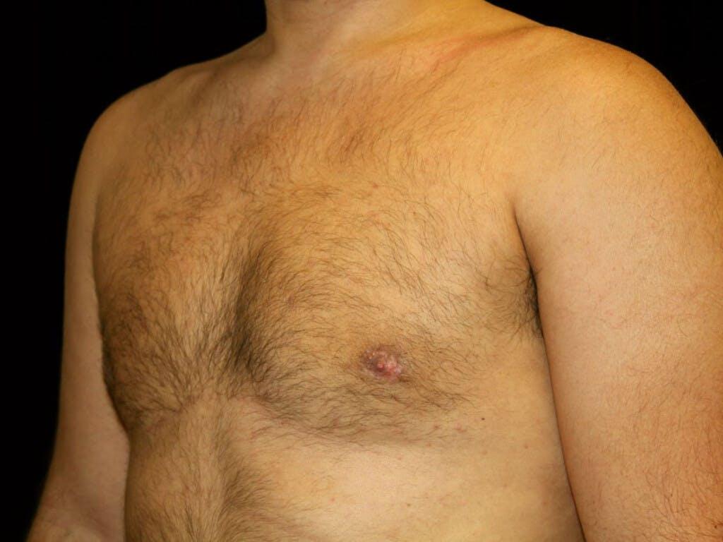 Gynecomastia Gallery - Patient 39352778 - Image 8