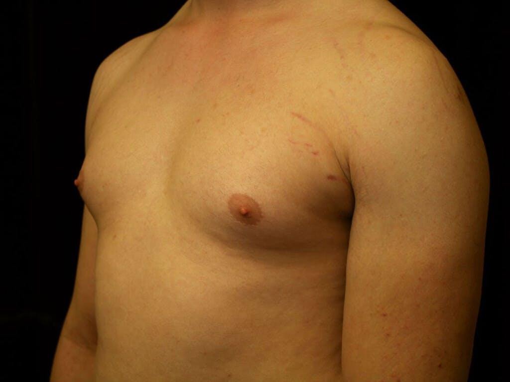 Gynecomastia Gallery - Patient 39352799 - Image 5