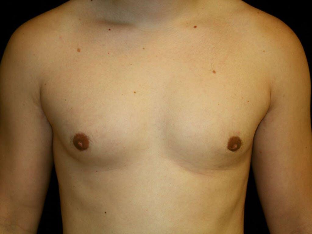 Gynecomastia Gallery - Patient 39352811 - Image 2