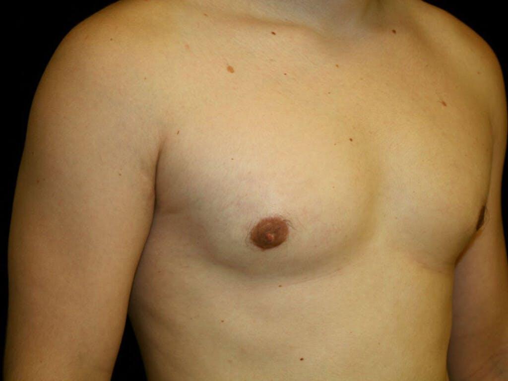 Gynecomastia Gallery - Patient 39352811 - Image 4
