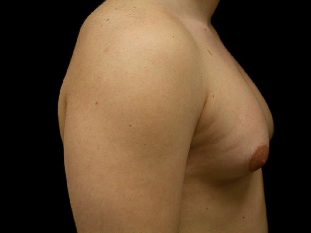 Gynecomastia Gallery - Patient 39352811 - Image 5