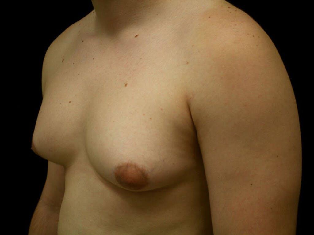 Gynecomastia Gallery - Patient 39352811 - Image 7