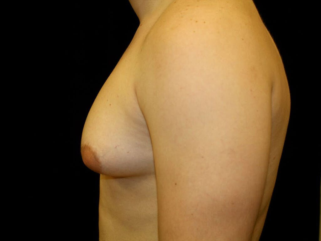 Gynecomastia Gallery - Patient 39352811 - Image 9
