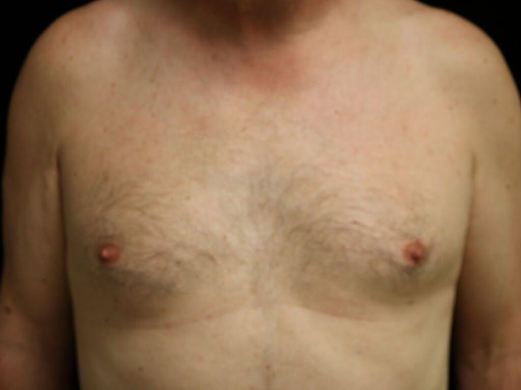 Gynecomastia Gallery - Patient 39352812 - Image 1