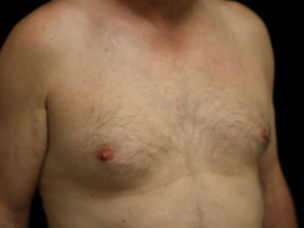 Gynecomastia Gallery - Patient 39352812 - Image 3