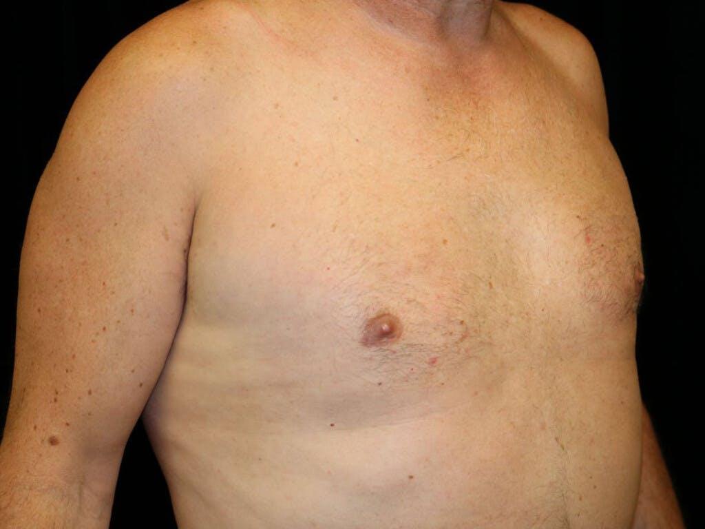 Gynecomastia Gallery - Patient 39352812 - Image 4
