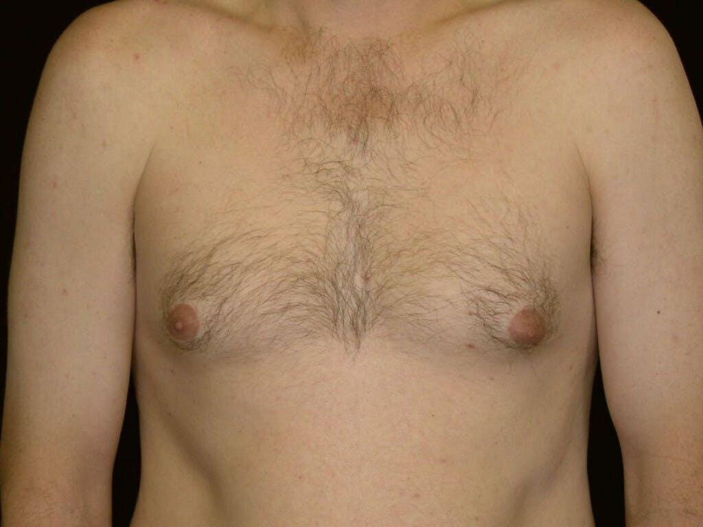 Gynecomastia Gallery - Patient 39352826 - Image 1