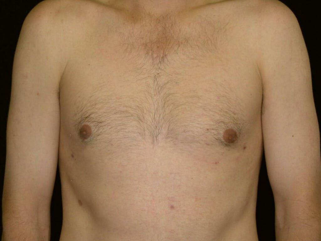 Gynecomastia Gallery - Patient 39352826 - Image 2