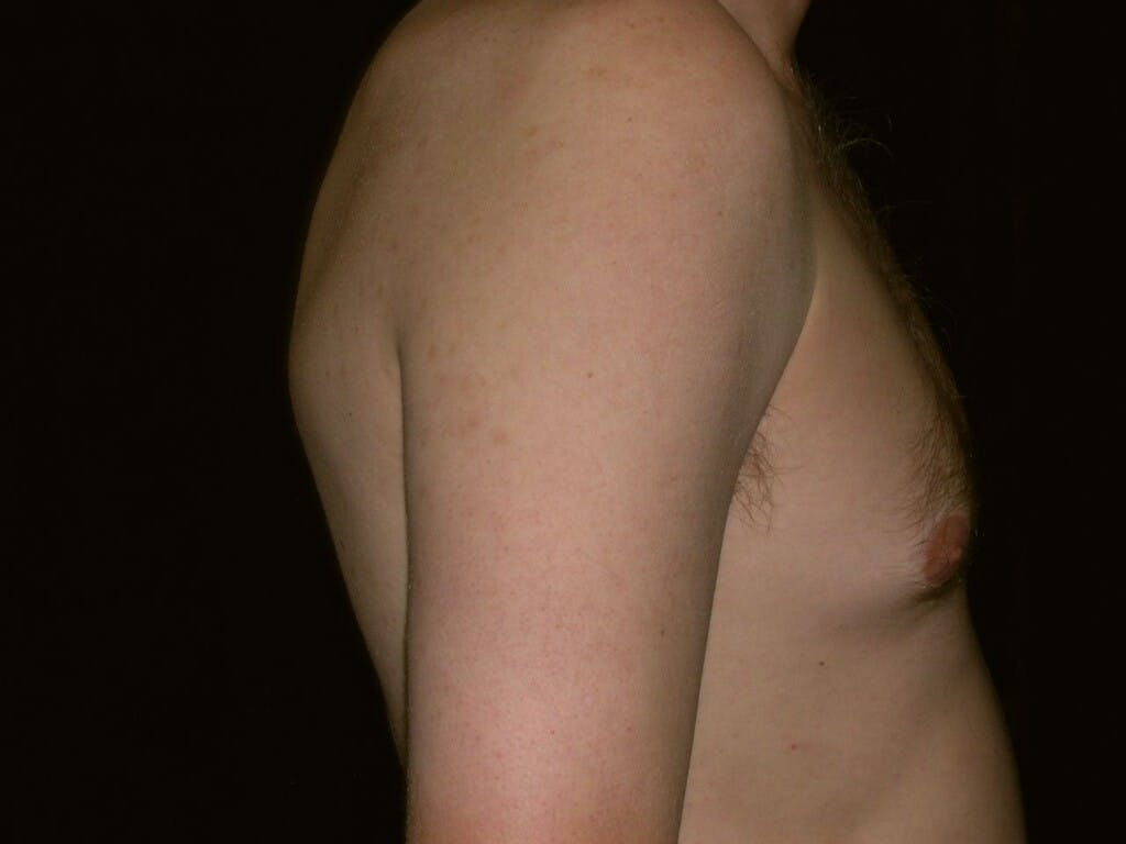 Gynecomastia Gallery - Patient 39352826 - Image 3