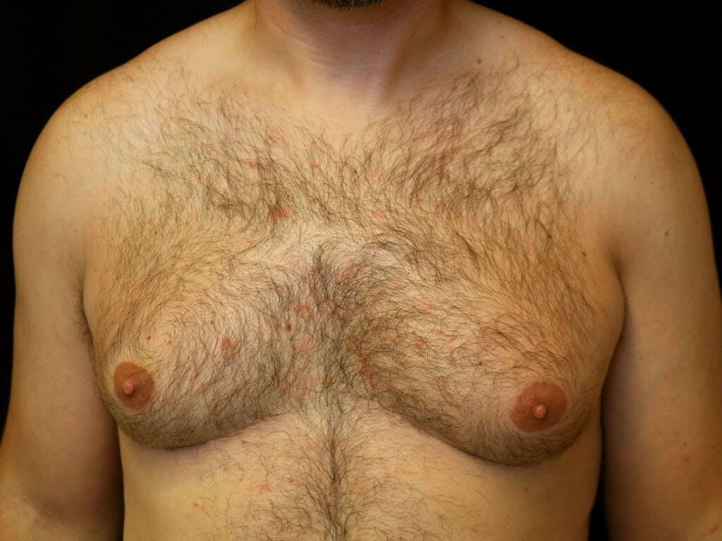 Gynecomastia Gallery - Patient 39352830 - Image 1
