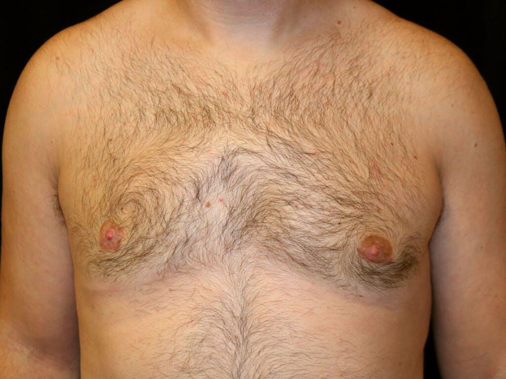 Gynecomastia Gallery - Patient 39352830 - Image 2
