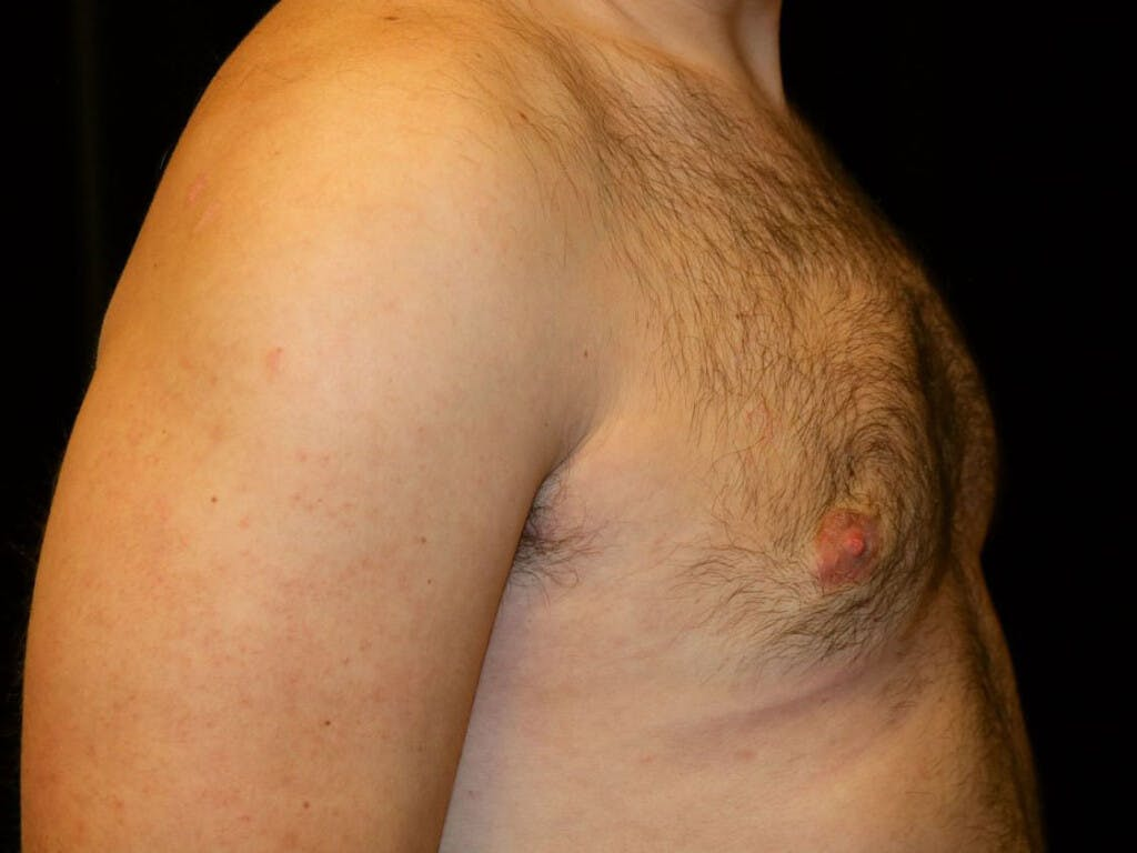 Gynecomastia Gallery - Patient 39352830 - Image 6