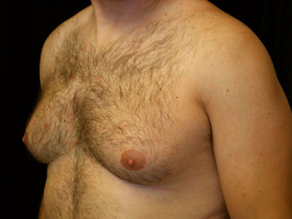 Gynecomastia Gallery - Patient 39352830 - Image 7