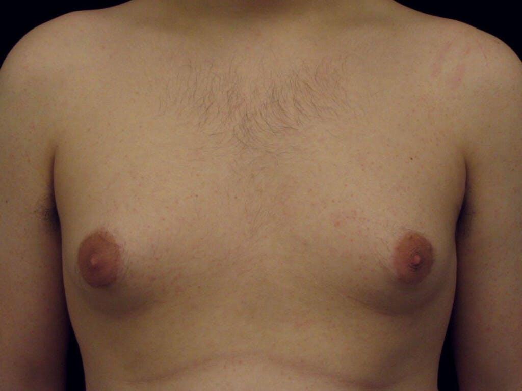 Gynecomastia Gallery - Patient 39352831 - Image 1