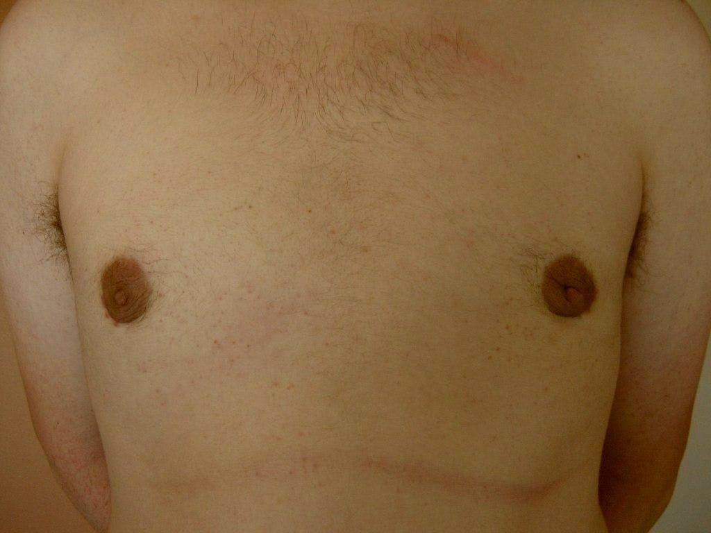 Gynecomastia Gallery - Patient 39352831 - Image 2
