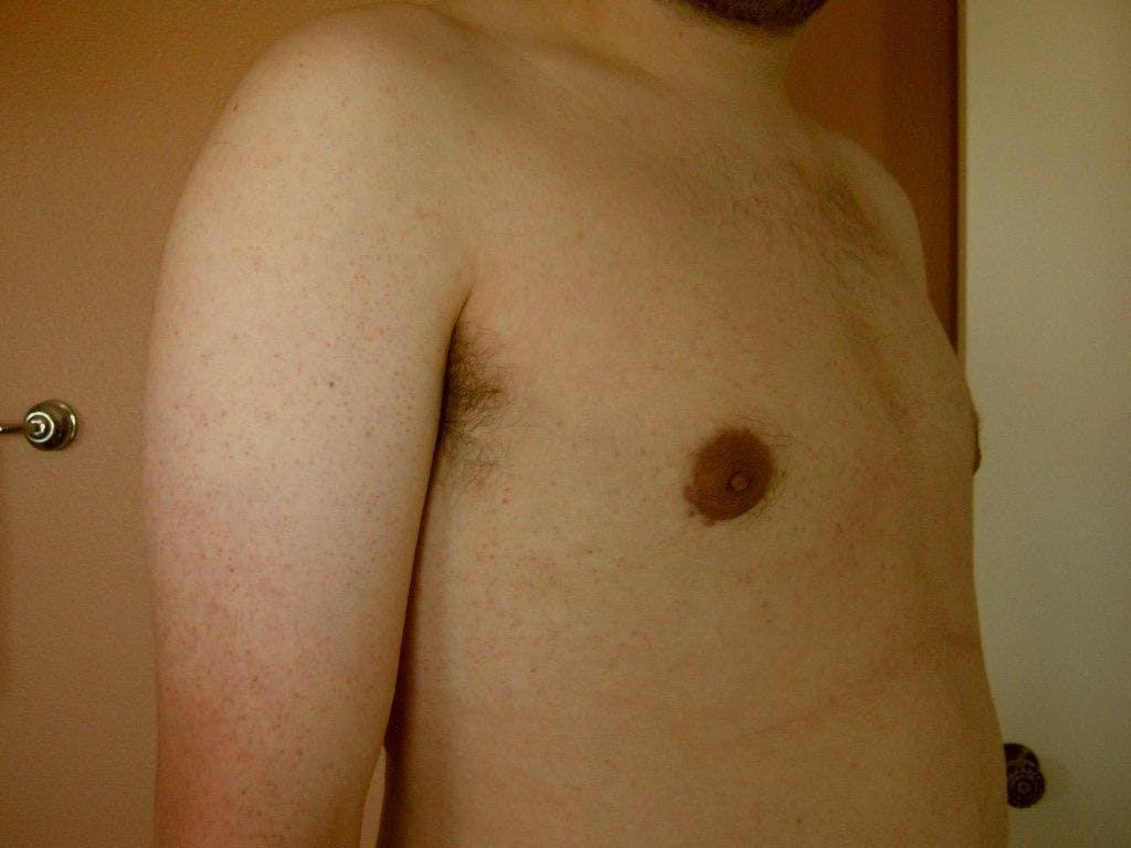 Gynecomastia Gallery - Patient 39352831 - Image 4