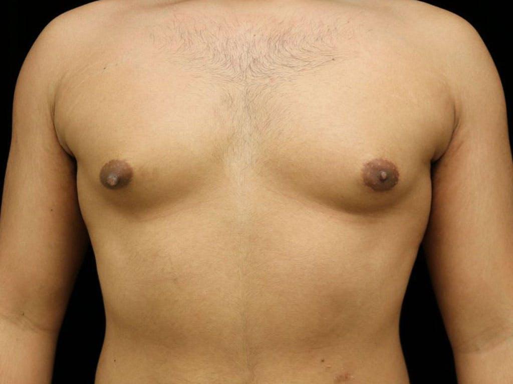 Gynecomastia Gallery - Patient 39352844 - Image 1