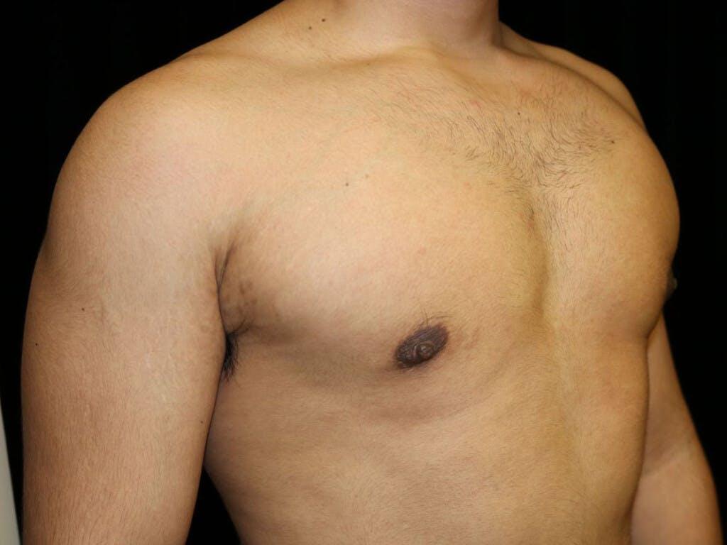 Gynecomastia Gallery - Patient 39352844 - Image 4