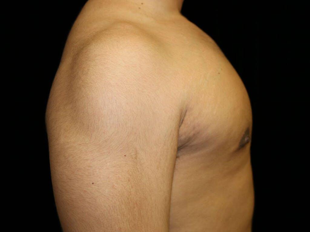 Gynecomastia Gallery - Patient 39352844 - Image 6