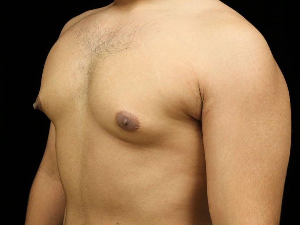 Gynecomastia Gallery - Patient 39352844 - Image 7