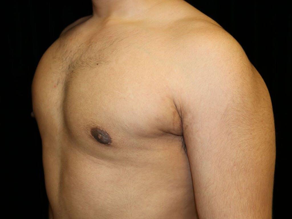 Gynecomastia Gallery - Patient 39352844 - Image 8