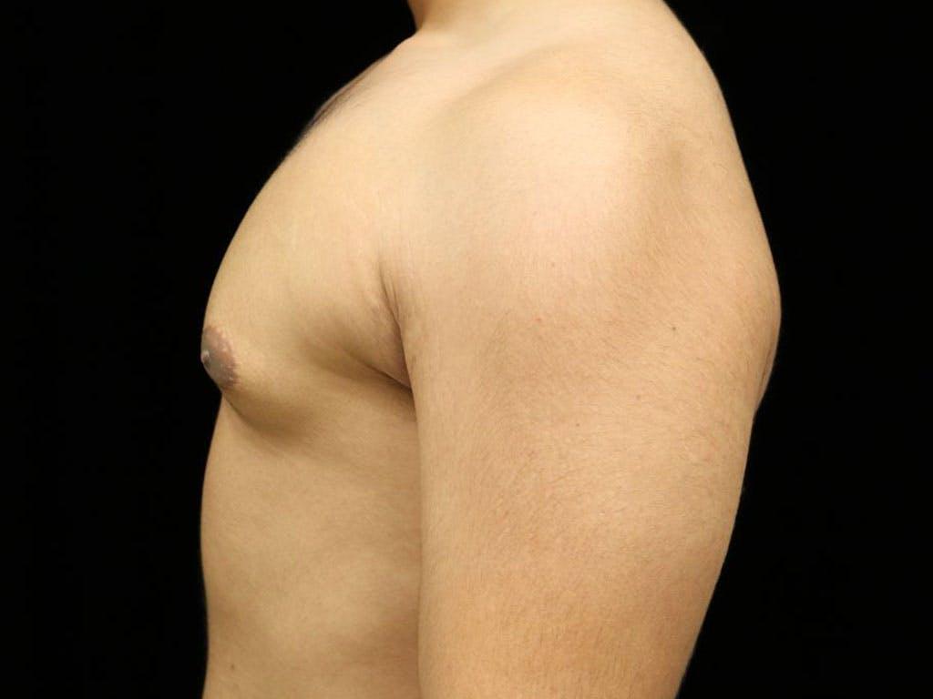 Gynecomastia Gallery - Patient 39352844 - Image 9
