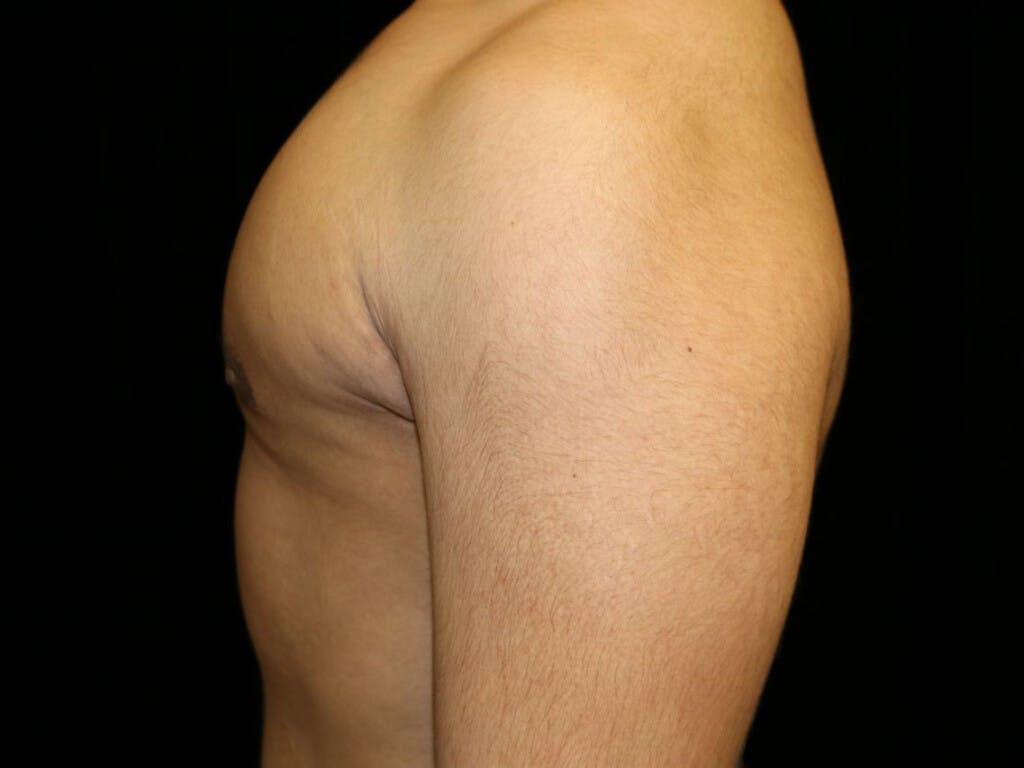 Gynecomastia Gallery - Patient 39352844 - Image 10
