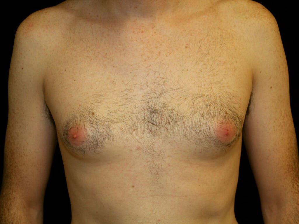 Gynecomastia Gallery - Patient 39352846 - Image 1