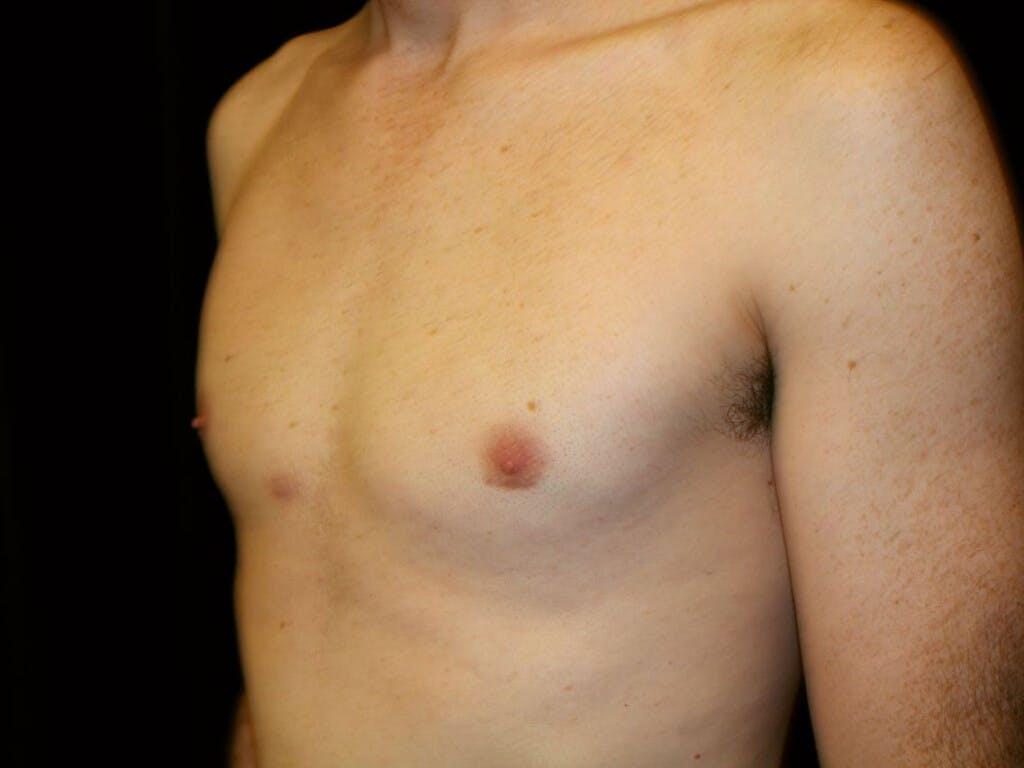Gynecomastia Gallery - Patient 39352846 - Image 4