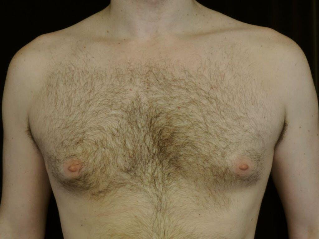 Gynecomastia Gallery - Patient 39352850 - Image 1