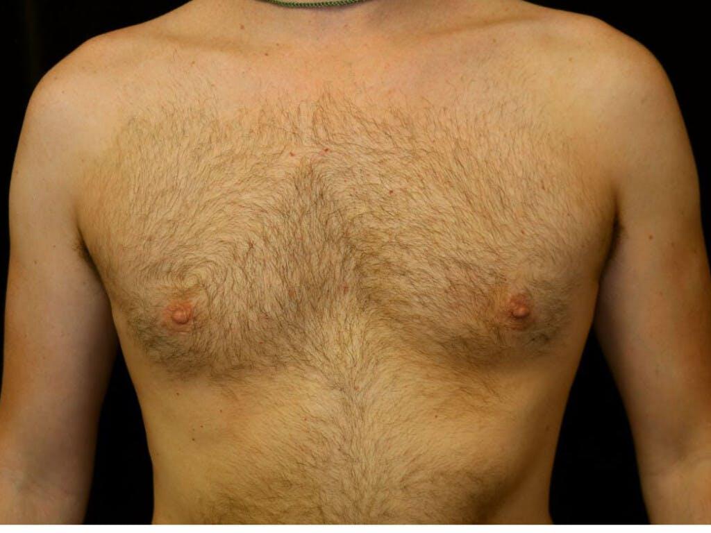 Gynecomastia Gallery - Patient 39352850 - Image 2