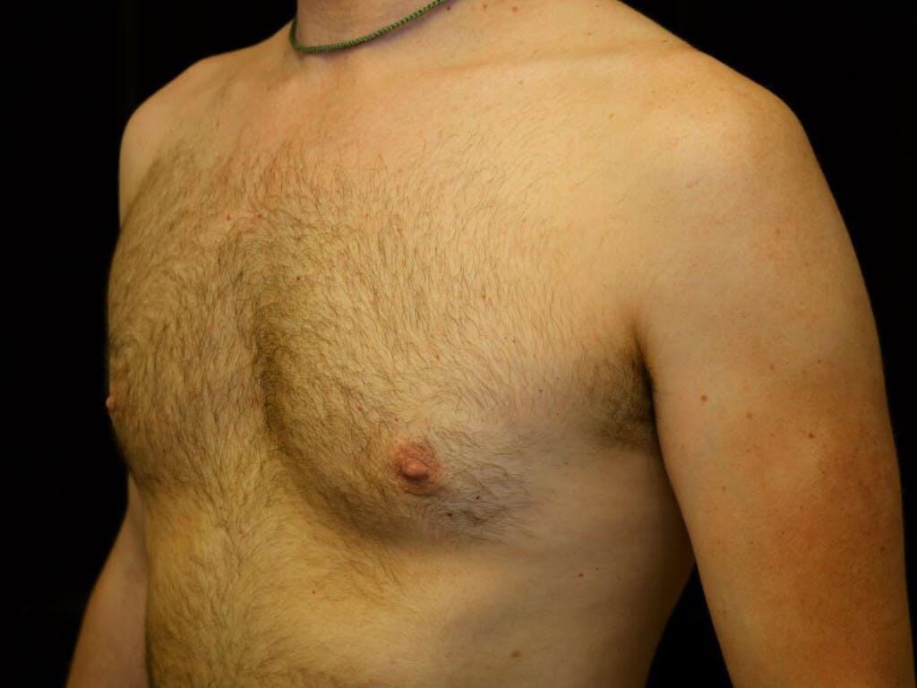 Gynecomastia Gallery - Patient 39352850 - Image 6